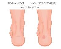 Haglund ` s deformacja pięta Zdjęcie Royalty Free