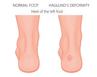 Haglund`s deformity of the heel. Vector illustration of the foot with normal heel and the  foot with Haglund`s deformity and bursitis. Used: blend, transparency Royalty Free Stock Photo