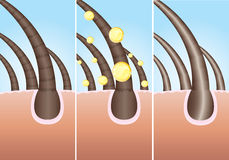 Hair care. Illustration of three phase of hair cure, additional