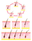 Hair cycle. Diagram of a hair follicle Royalty Free Stock Photos