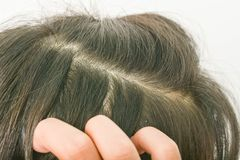 Hair dandruff Dandruff and scalp. Hair  Dandruff and scalp and itching stock images