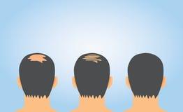 Hair fall treatment on bald. The Increase hair volume after hair fall treatment on bald Royalty Free Stock Photo
