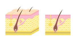 Hair follicle. Diagram of a hair follicle Royalty Free Stock Photos