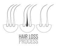 Hair follicles loss process Royalty Free Stock Images