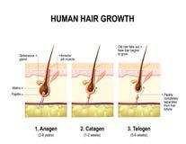 Hair growth. anagen, catagen and telogen Stock Photo