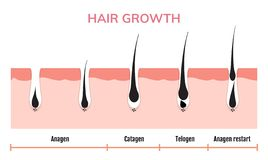 Free Hair Growth Cycle Skin. Follicle Anatomy Anagen Phase, Hair Growth Diagram Illustration Stock Image - 147324261