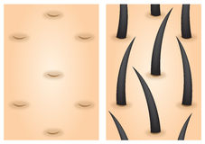 Hair growth stimulants before after Royalty Free Stock Images