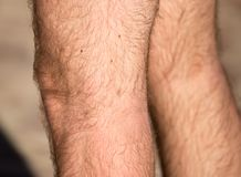 Hair on the legs of a man.  Stock Image