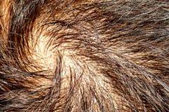 Hair loss stock photos