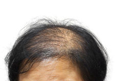 Hair Loss. Asian female head with hair loss isolated Royalty Free Stock Images