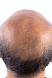 Hair loss bald man Royalty Free Stock Photos