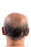 Hair loss bald man. Isolated on white background Stock Image