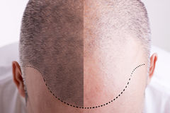 Free Hair Loss - Before And After Royalty Free Stock Image - 53131726