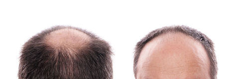 Hair loss. Circular hair loss at the back of the head and receding hairline at the front royalty free stock photography