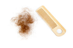 Hair loss concept Royalty Free Stock Images