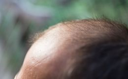 Hair loss on the head of a man.  Royalty Free Stock Image