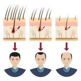Hair loss illustration. Stock Photos