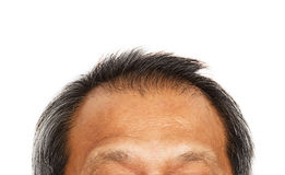 Hair loss , Male head with hair loss symptoms Stock Photography