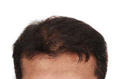 Hair loss, Male head with hair loss symptoms front side Stock Image