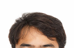 Hair loss, Male head with hair loss symptoms front side. Royalty Free Stock Photo