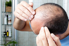 Hair loss. Man touching head with his hands. Hair loss concept stock photos