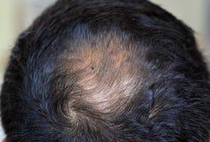 Hair loss problem Royalty Free Stock Image