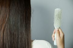 Hair loss problem. Hairs fall in comb, hair fall everyday. Serious problem royalty free stock photography