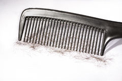 Hair loss problem Royalty Free Stock Images