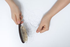 Hair loss problem Royalty Free Stock Photo