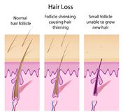 Hair loss process. Hair loss basis with changes in hair follicles, eps8 Stock Image