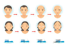 Hair Loss. The process of hair loss. Cartoon illustration vector illustration