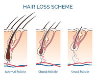 Hair loss scheme Royalty Free Stock Photography