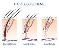 Hair loss scheme. Loss hair, growth hair problem, health hair. Vector illustration Royalty Free Stock Photography