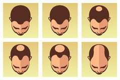 Hair loss stages Royalty Free Stock Photo