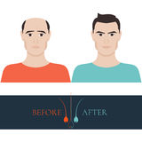 Before and after hair loss treatment Royalty Free Stock Photo