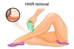 Hair removal epilator Stock Photography