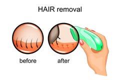 Hair removal epilator Stock Image