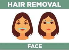 Hair removal from face promotional poster with womans head. Hair removal from face with help of special cosmetical means promotional poster with womans head Stock Photography