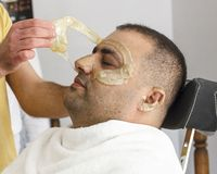 Hair removal. Man`s face sugaring epilation in Turkey. Hair removal. Man`s face sugaring epilations in Turkey stock image