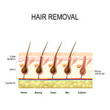 Hair removal. With wax, cream, epilation and shaving. The height of the removal of the hair shaft. different methods Stock Photography