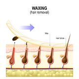 Hair removal. Waxing. Is a form of semi-permanent hair removal which removes the hair. Structure of the human skin Royalty Free Stock Photo