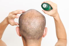 Hair restorer Royalty Free Stock Photography