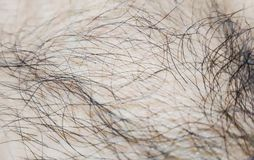Hair on the skin.Macro. stock images