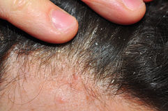 Hair skin trouble dandruff. Hair skin itching, trouble caused by psoriasis and dandruff Stock Images