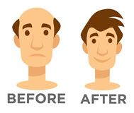 Hair transplantation before and after effect bald man. Before and after effect hair transplantation bald man and guy with hairstyle vector isolated character stock illustration