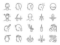 Free Hair Transplantation Line Icon Set. Included Icons As Hair Transplant, Hair Loss,hair Follicles, FUE, FUT, Alopecia And More. Stock Photography - 159760852