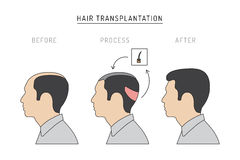 Free Hair Transplantation Vector Royalty Free Stock Images - 93815329