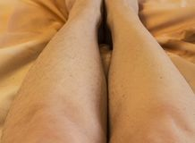 Hair on women`s legs, hair removal before and after stock images