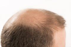 Haircare de perte des cheveux d'homme d'alopécie de calvitie photo libre de droits