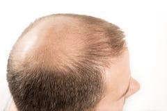 Haircare de perte des cheveux d'homme d'alopécie de calvitie images libres de droits